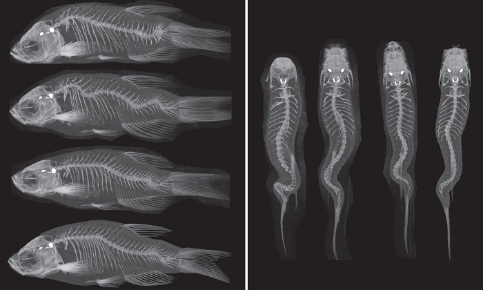 Researchers Discover Genetic Mechanism Behind Scoliosis in Fish