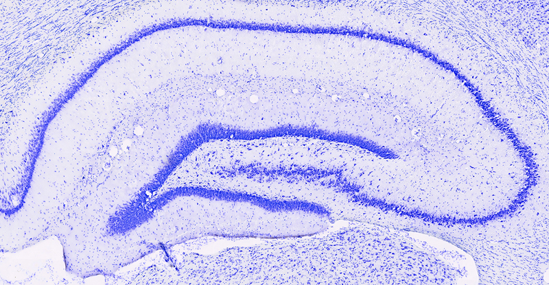 The hippocampus. Image courtesy of the Colgin lab.