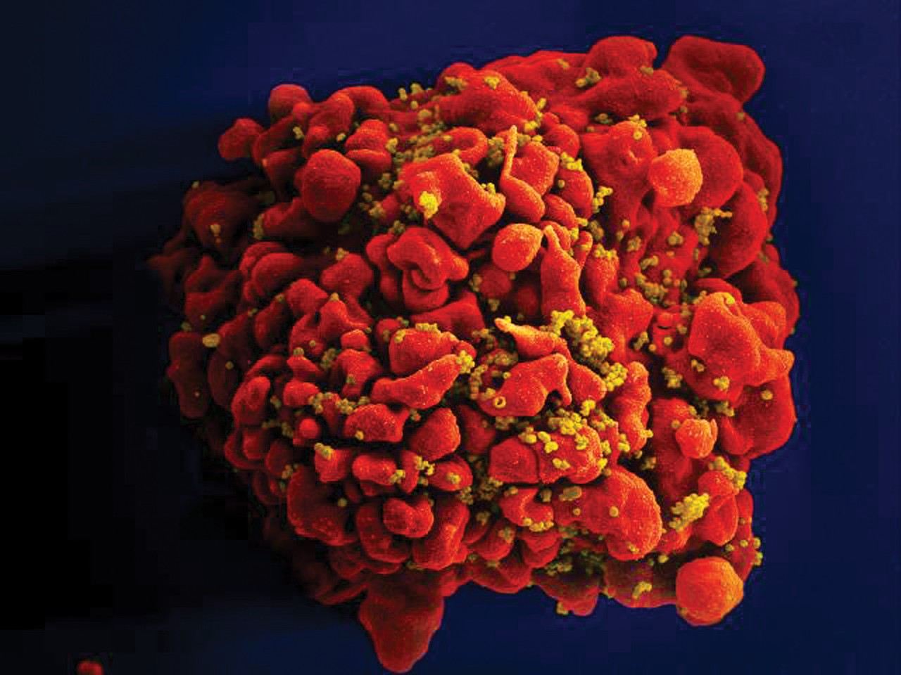 HIV Not As Infectious Soon After Transmission As Thought