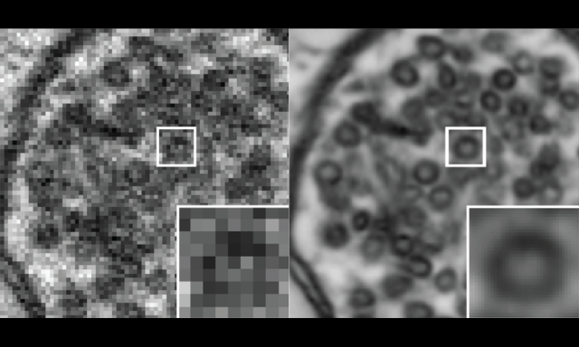 New Study Shows How Deep-learning Technology Can Improve Brain Imaging