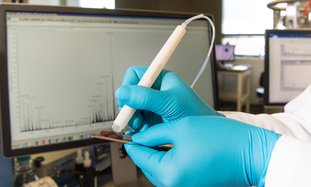 MasSpec Pen Shows Promise in Pancreatic Cancer Surgery